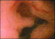 Circumcised clit picks shown